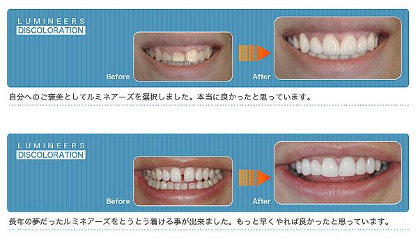 shiiki_image28