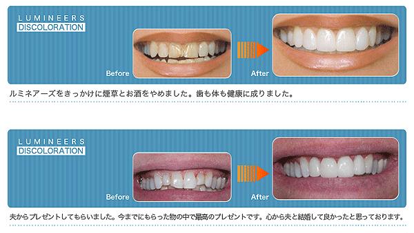 shiiki_image29